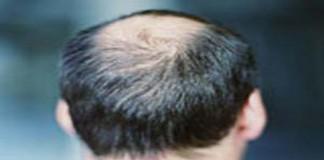 راه درمان ریزش مو کشف شد