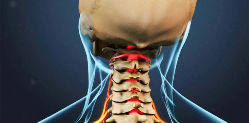 نام بیماری آرتروز، درد استخوان و ساییدگی غضروف ها و مشکلات در راه رفتن را یادآوری می کند