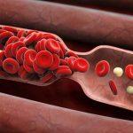 علایم و نشانه های سرطان خون چیست؟